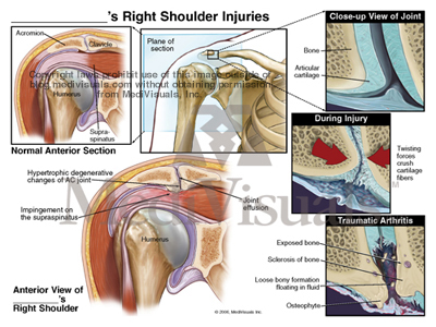 arthritis-AC-joint-shoulder