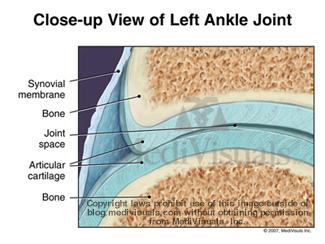 arthritis-joint-normal