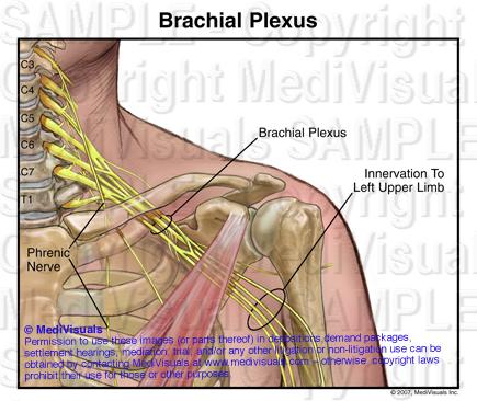 Brachial Plexus 205299 02XA