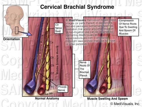 Brachial Plexus 205299 02XB