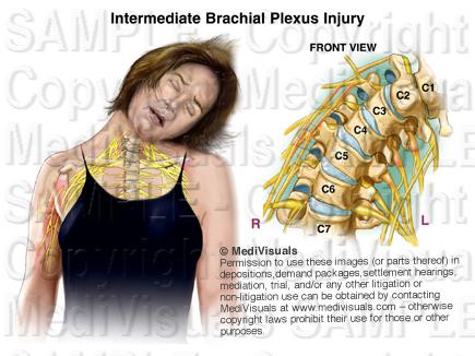 Brachial Plexus R14893 05X