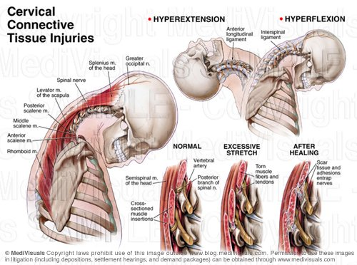 cervical-strain-injury
