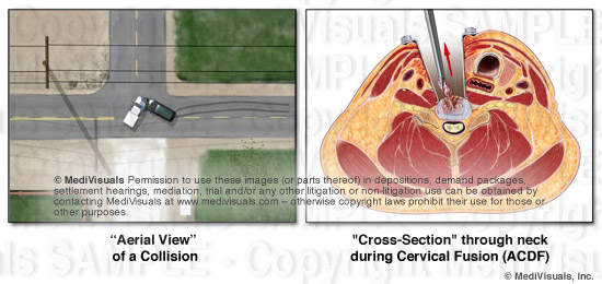 Cross Section Blog image2 REVISED