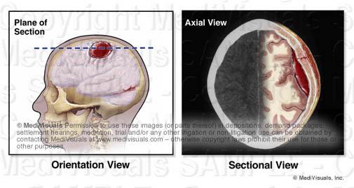 cross-section plane of brain hematoma