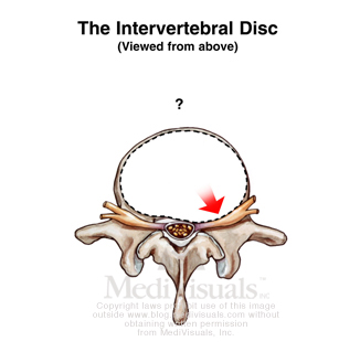 impinge-disc-injury