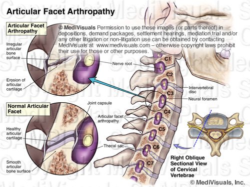 Facet Arthropathy Exhibit