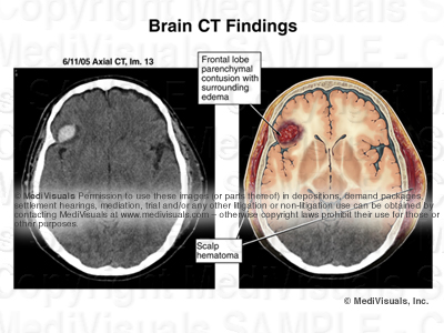 hematoma, ct scan, brain injury