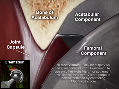 Hip Replacement Recall Anatomy