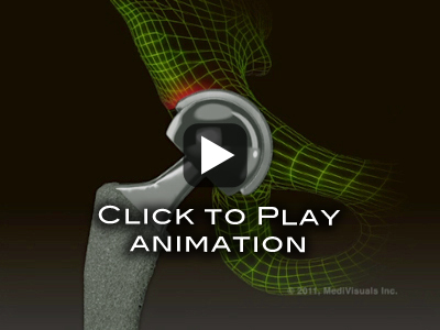 Hip Replacement Recall Animation