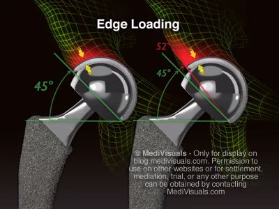 Hip Replacement Recall Edge Loading