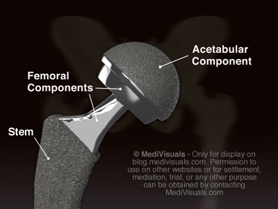 Hip Replacement Recall Implant Components