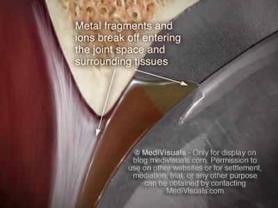 Hip Replacement Recall Metal Fragments