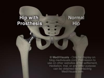 Hip Replacement Recall Pelvic Anatomy