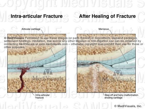 Image3 Frac AfterHealSTAMP