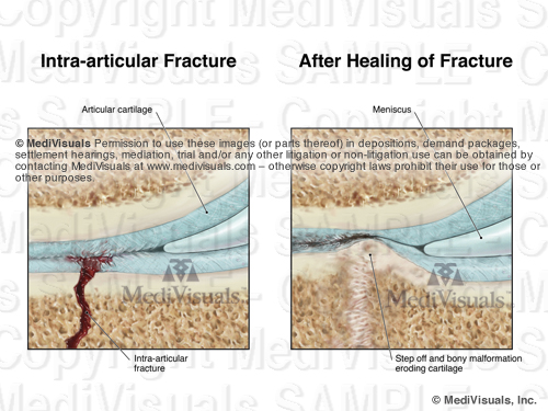 Image3 Frac AfterHealSTAMP