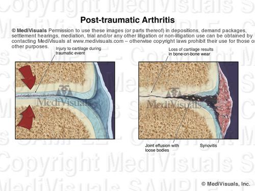 Image4 ArthritisSTAMPED2