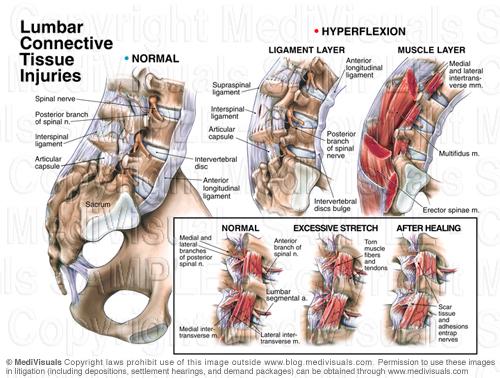 lumbar-strain-injury