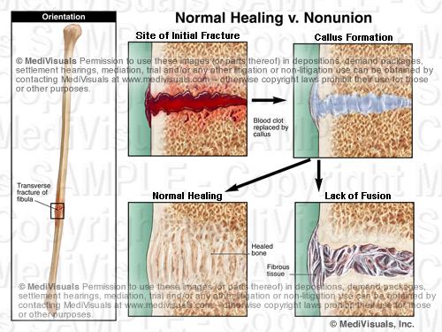 Nonunion fracture