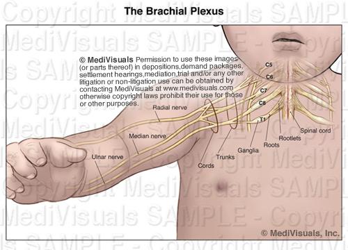 Pediatric Brachial Plexus