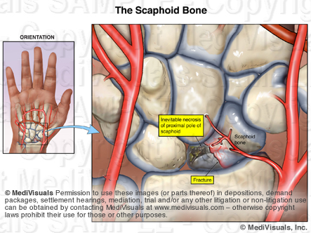 Scaphoid Avascular Necrosis