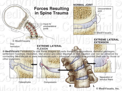 Spine Trauma Forces Osteophyte Disc