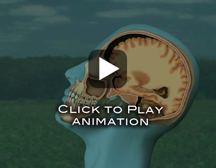 TBIanimation still