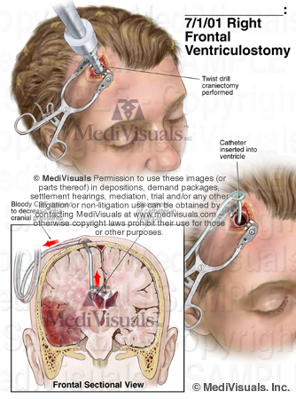 Ventriculostomy traumatic brain injury